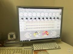 自動視野計データファイリングシステム